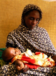 Ali, a 16-month-old baby who is being treated for severe acute malnutrition