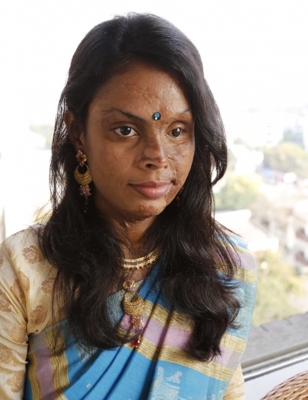 In 1998, Monira Akter was attacked with acid and her life was changed forever in an instant. The left side of her face and the upper part of her body was badly burnt. She was only 9 years old at the time. The Acid Survivors Foundation (ASF) arranged for Monira to travel to Spain for reconstructive surgery. Picture: Ricci Coughlan/DFID